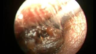 EAR WAX REMOVAL IN A THREE YEAR OLD CONSCIOUS CHILD