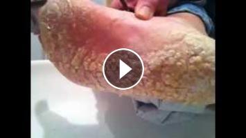 bottom of the feet peeling off