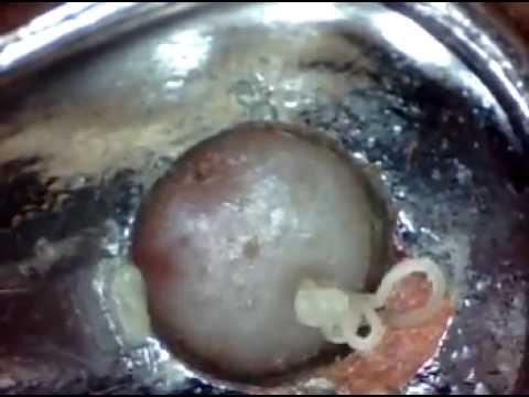 blackhead - Removing Blackheads Under High Magnification Part 3