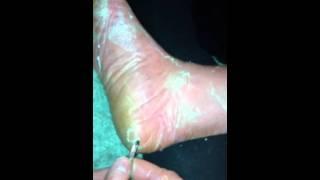 Peeling Off Skinn